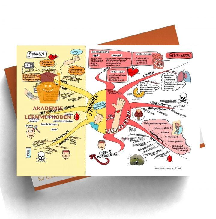 Mindmap zum Thema Synkopen - Tachykardie