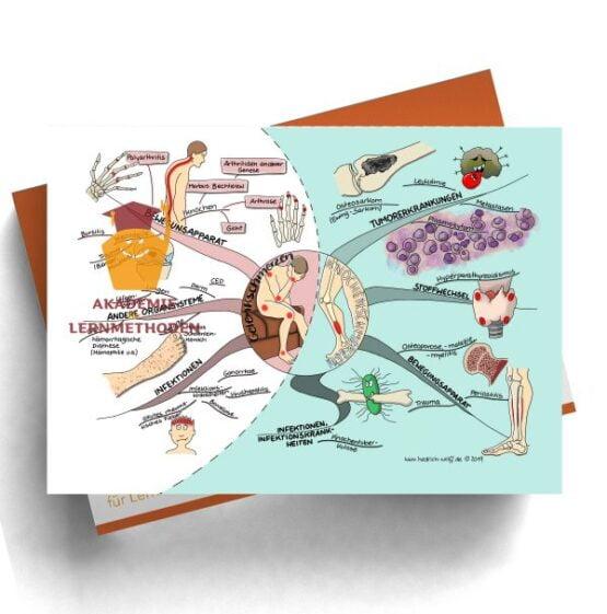 Mindmap zum Thema Gelenkschmerzen - Knochenschmerzen